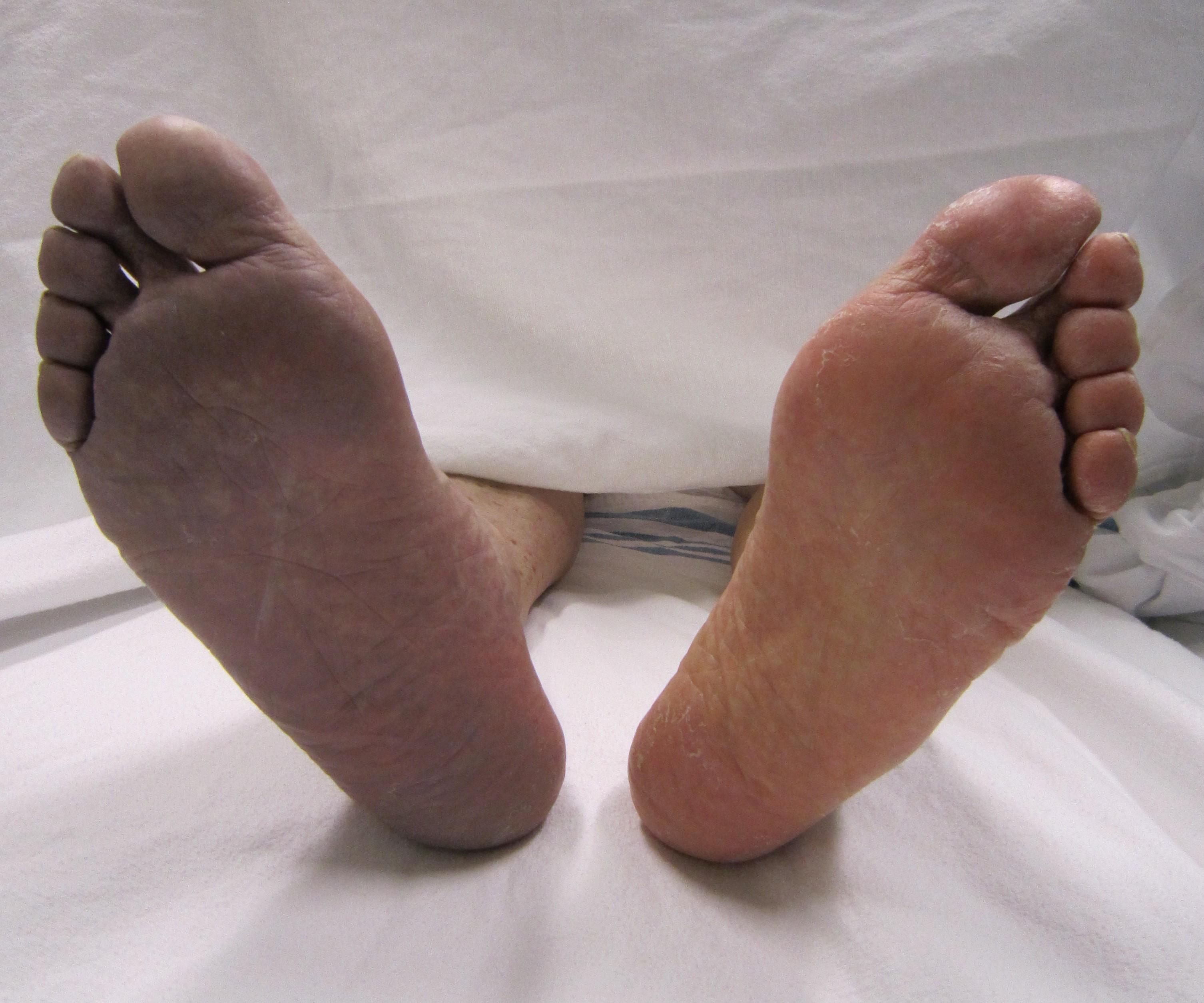 sintomas trombosis venosa profunda brazo