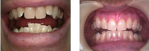Zahnspange: vorher / nachher
