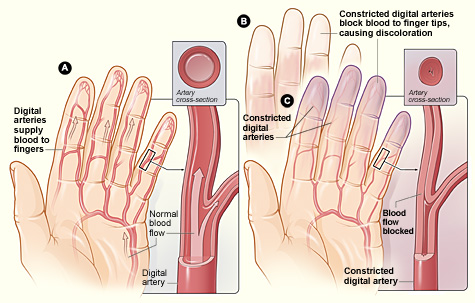 Flow Chart Tips: Raynaud7s Disease.jpg - Wikimedia Commons,Chart