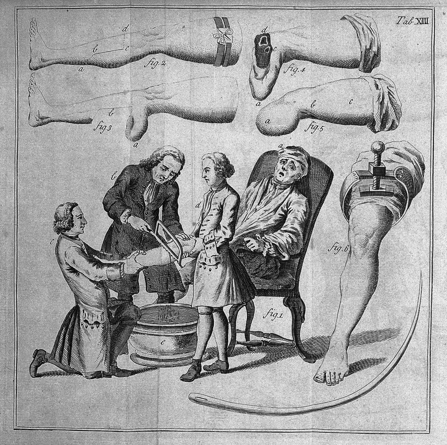 File:S. Mihles, The elements of surgery, 1764 Wellcome L0029965.jpg