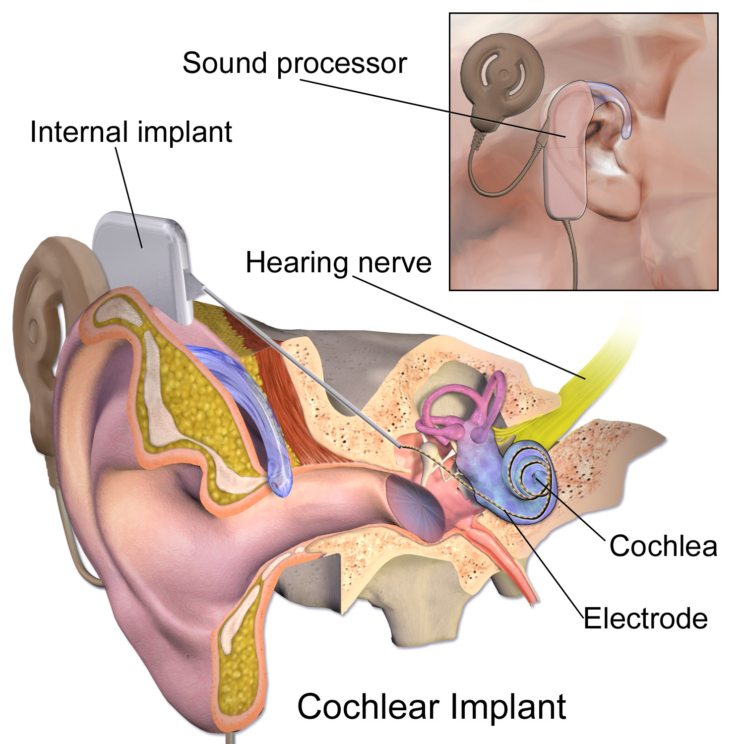 Cochlear implant - Wikipedia on