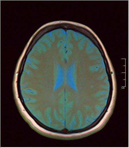 Brain MRI 07.jpg
