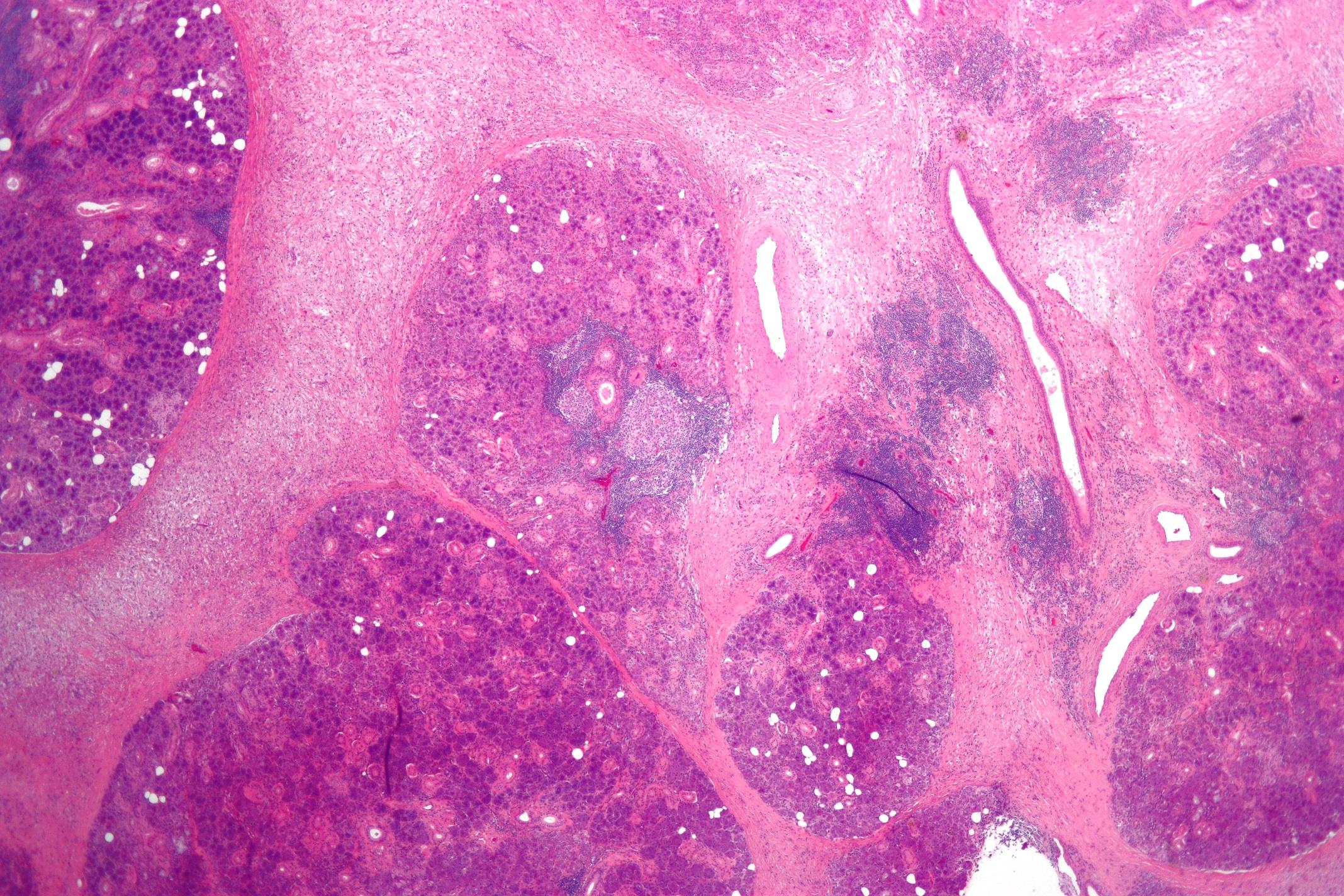 parotis infektion