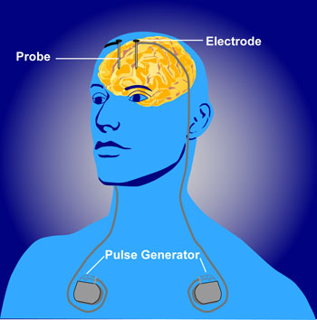 Deep_brain_stimulation.jpg?profile=RESIZE_710x