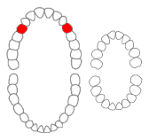 Maxillary first premolars01-01-06.png