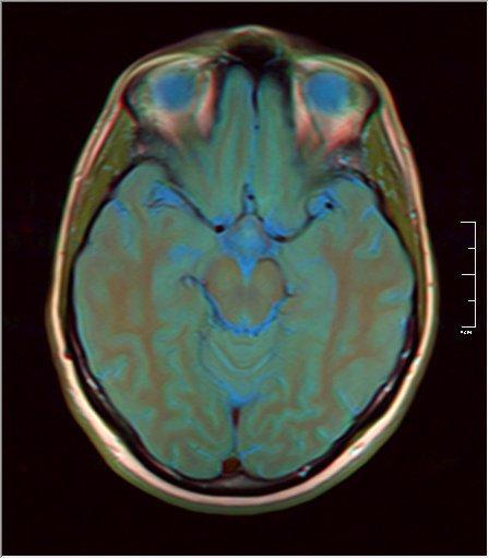 Brain MRI 0053 12.jpg
