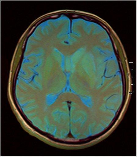 Brain MRI 0211 09.jpg