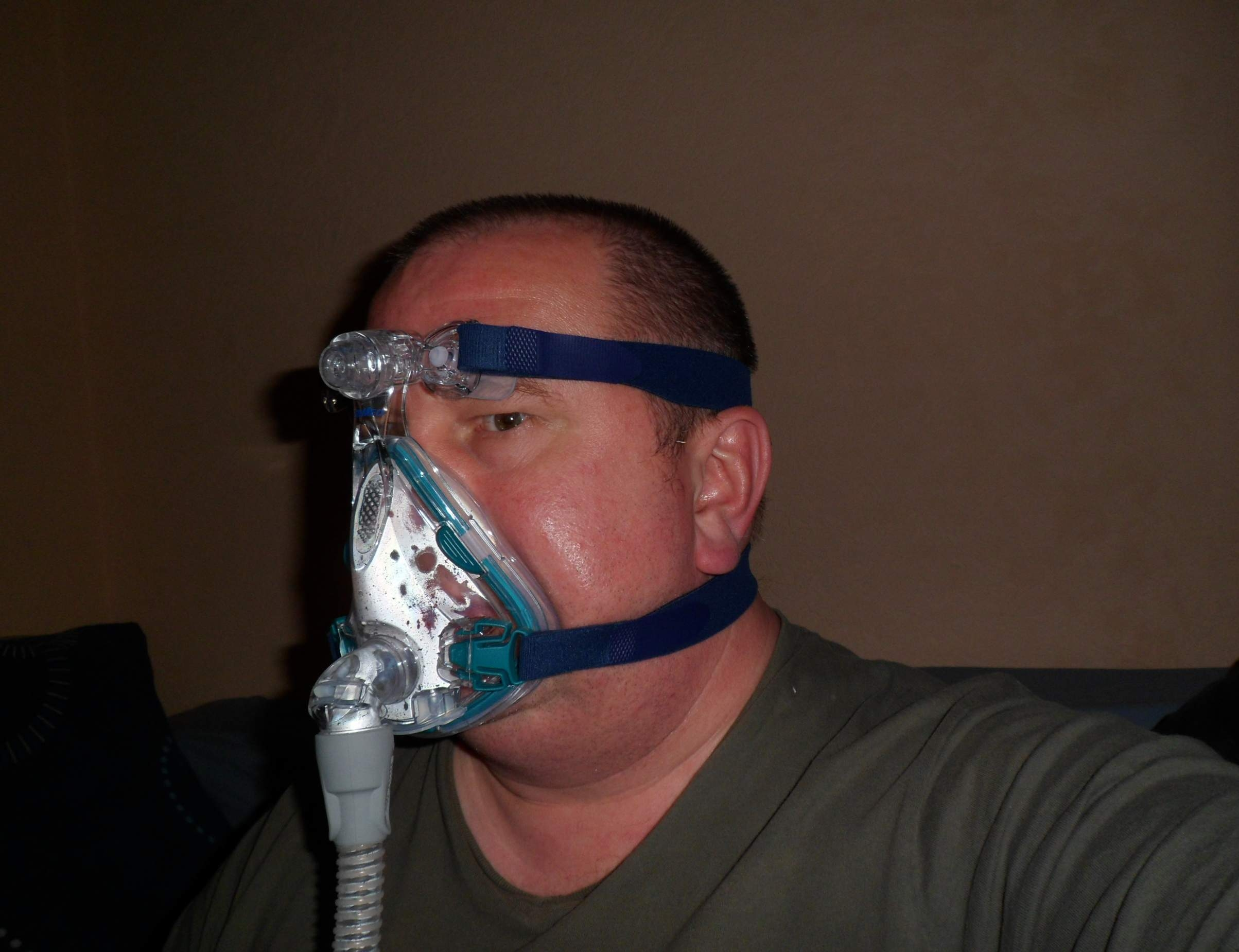 how do nasal corticosteroids work