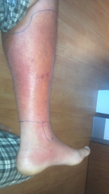 cellulitis pictures on leg #10