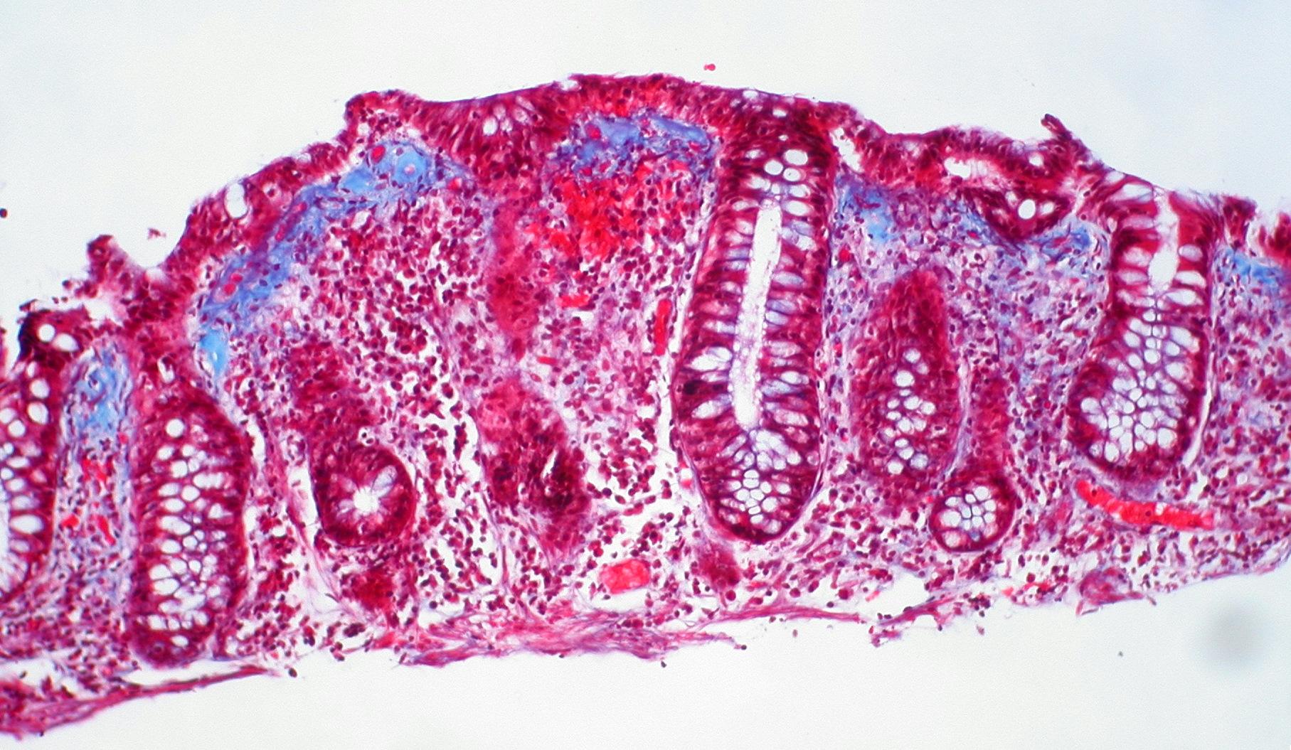 el nombre de las bacterias que causan las enfermedades de la colera