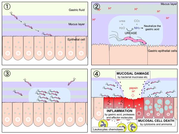 File:H pylori ulcer diagram en.png