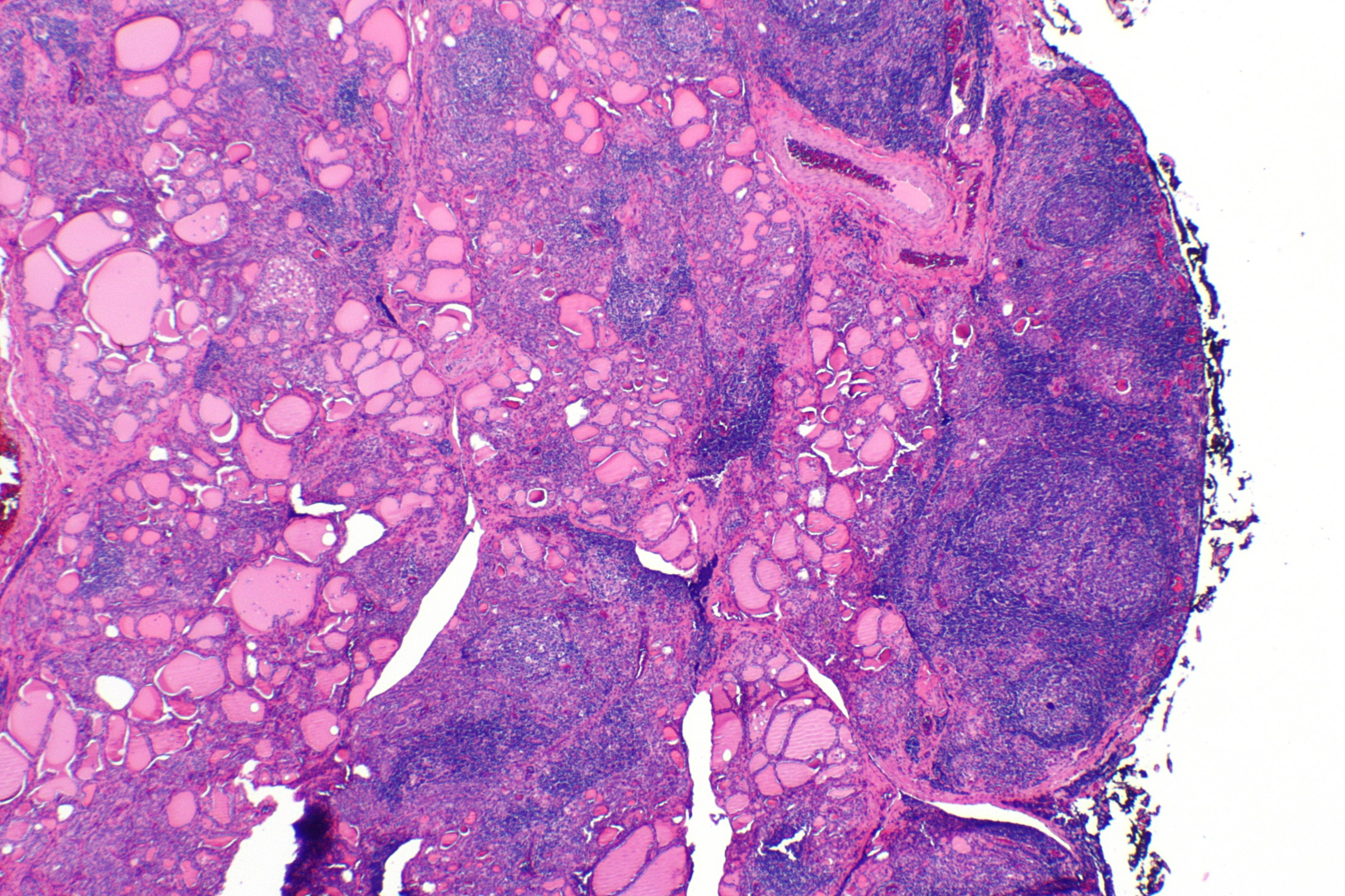 Hashimoto S Thyroiditis Wikipedia