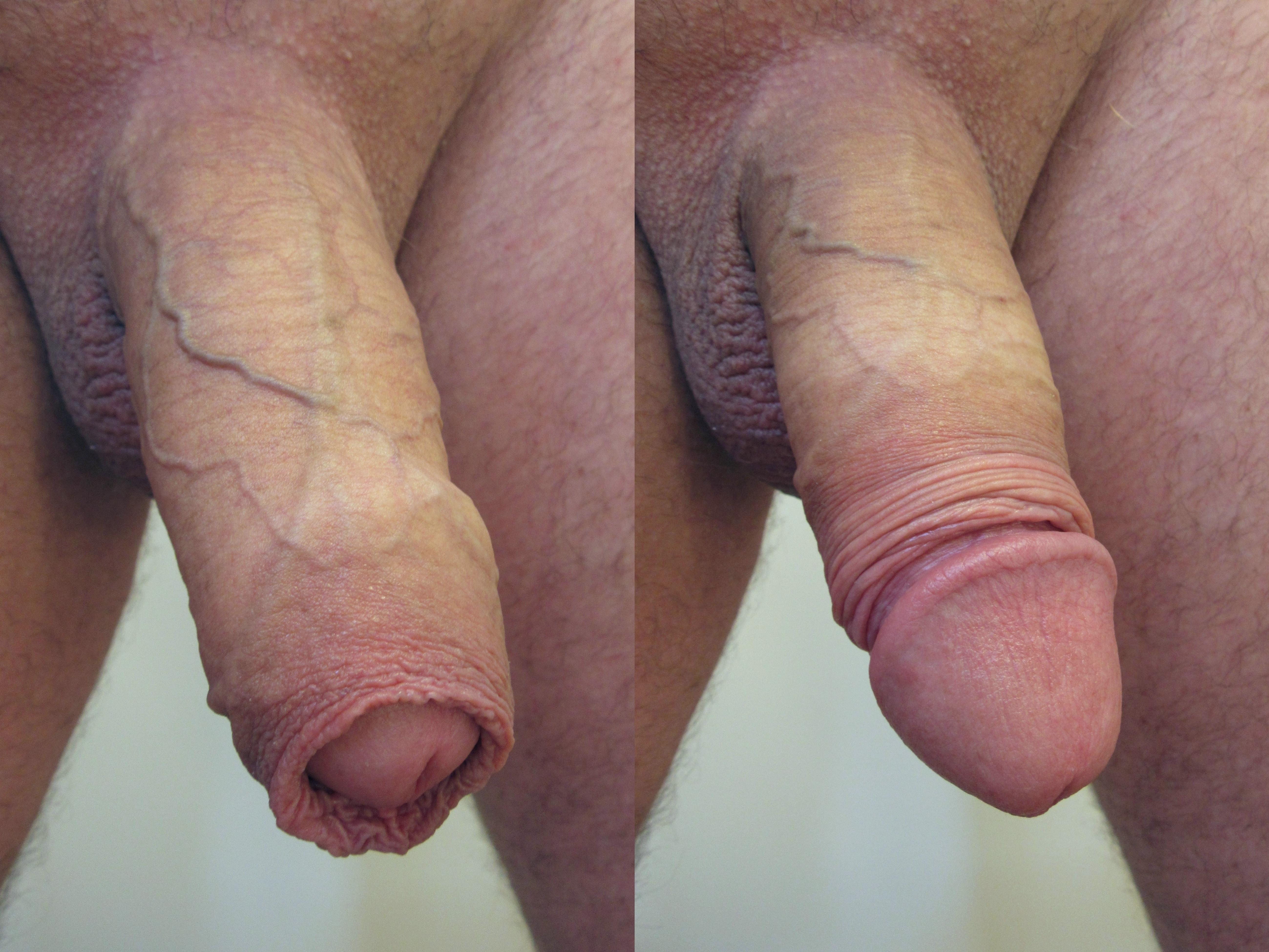 duży ładny penis czerwony seks