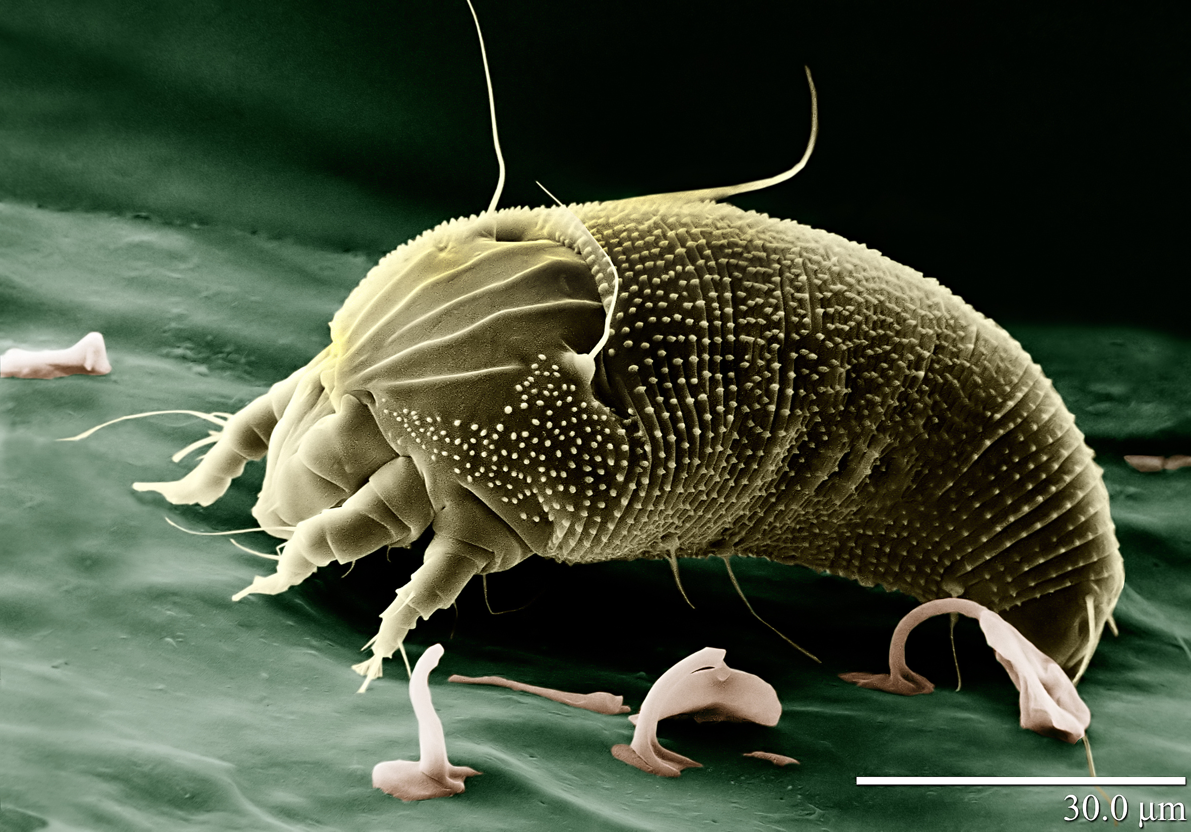https://upload.wikimedia.org/wikipedia/commons/5/51/Rust_Mite,_Aceria_anthocoptes.jpg