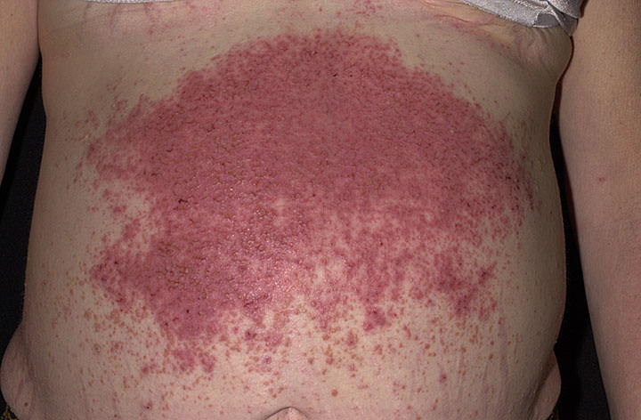 Severe Dermatitis Herpetiformis on the belly