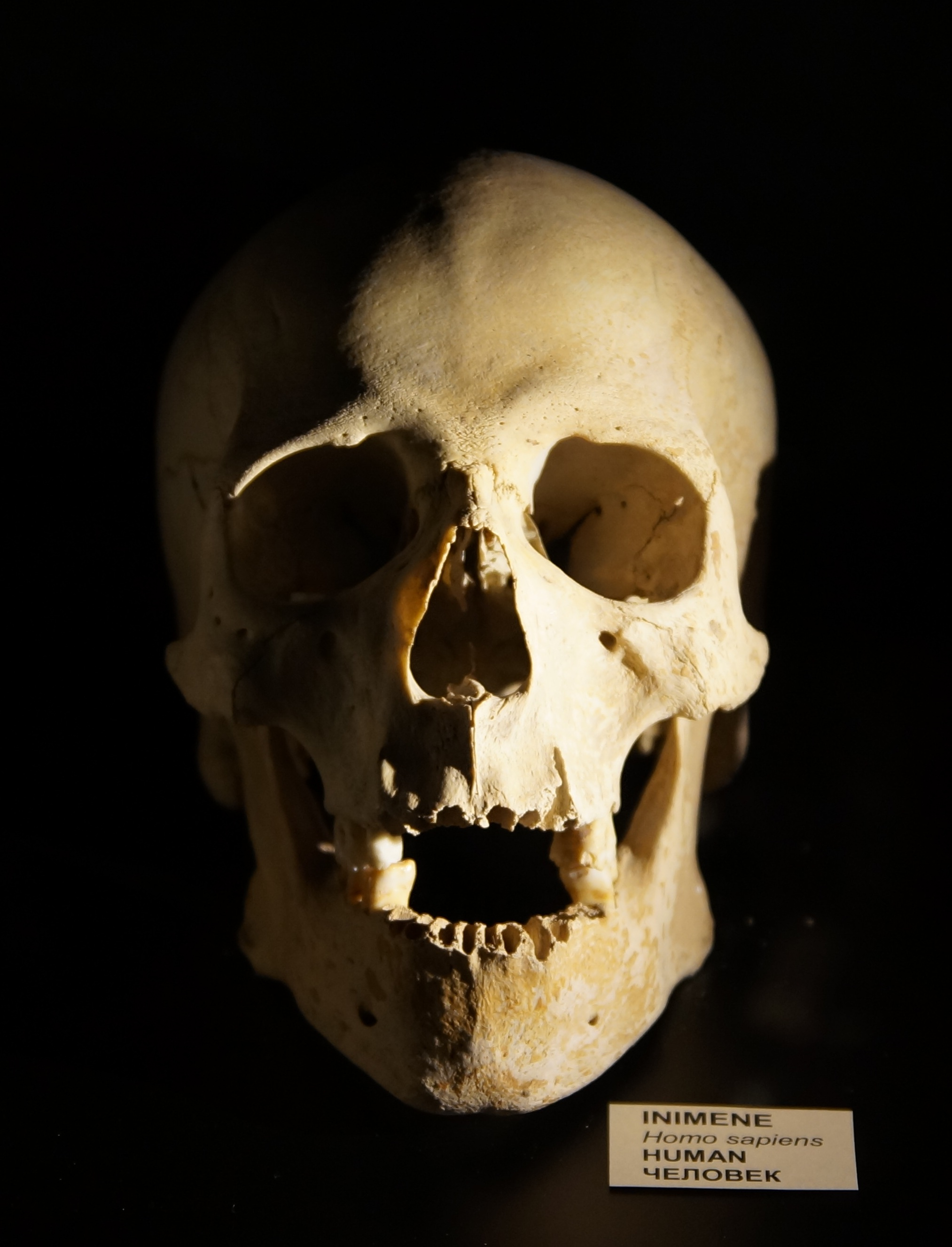 Filehuman Skull 1g Wikimedia Commons
