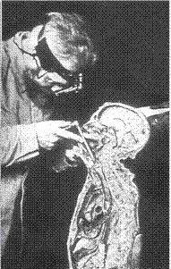Gustav Killian montrant une bronchoscopie sur un sujet anatomique.