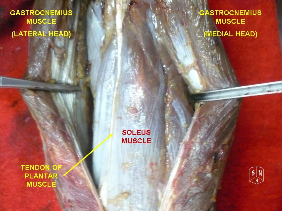 Image Result For Tendon