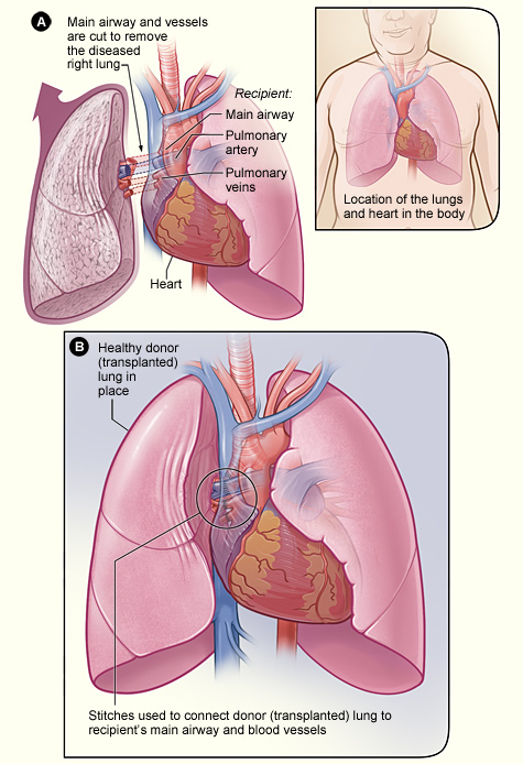 Lung transplantation - Wikipedia