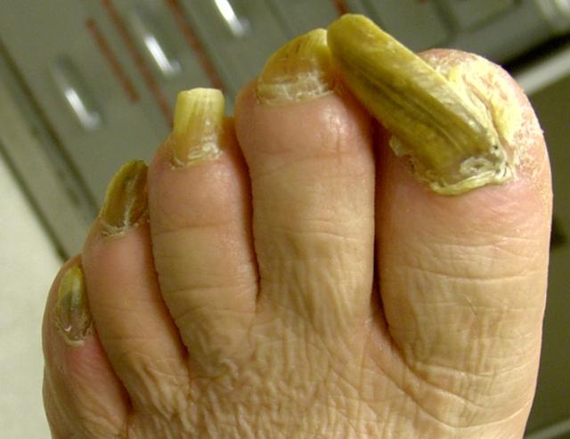 Enfermedades de las unas de pies