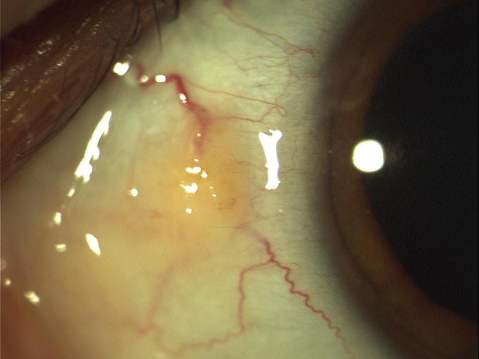 Yellow Spot On Eye