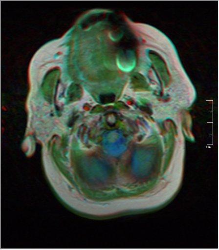 Brain MRI 0052 19.jpg