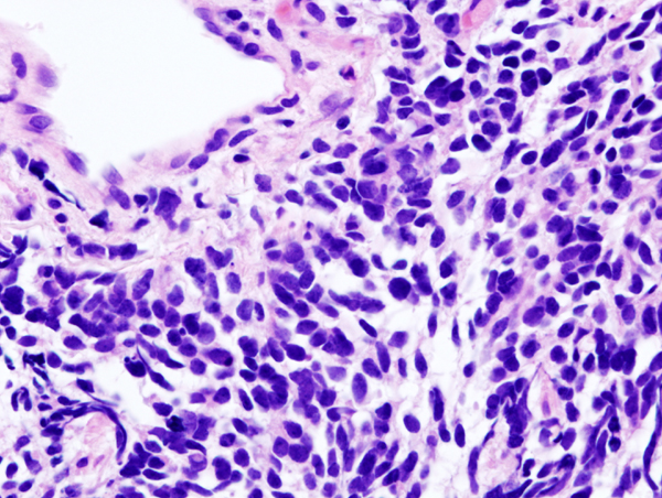 Histopathologic image of small cell carcinoma of the lung. CT-guided core needle biopsy. (Image credit: Wikipedia)