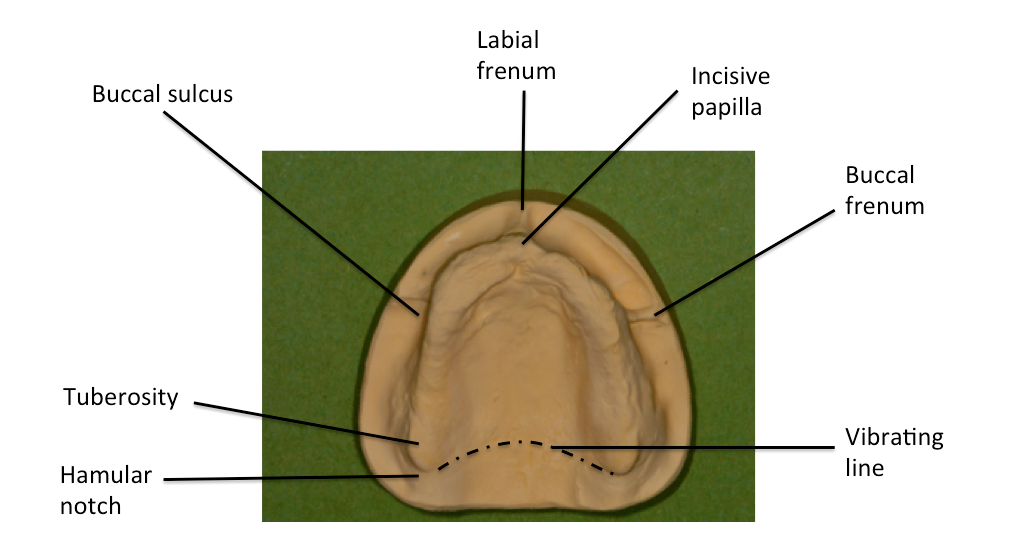 File:Surface anatomy of maxillary denture-bearing area.png ...