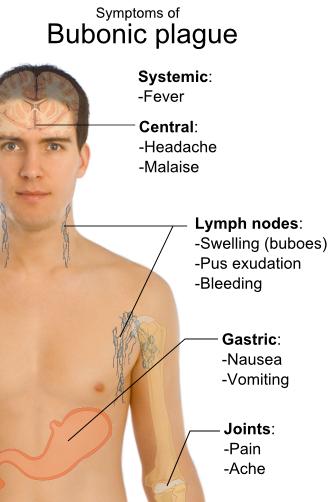 Symptoms_of_bubonic_plague.png