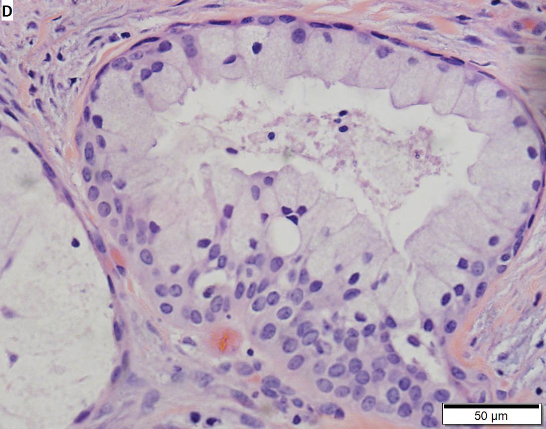 Mucoepidermoid carcinoma of parotid, low grade