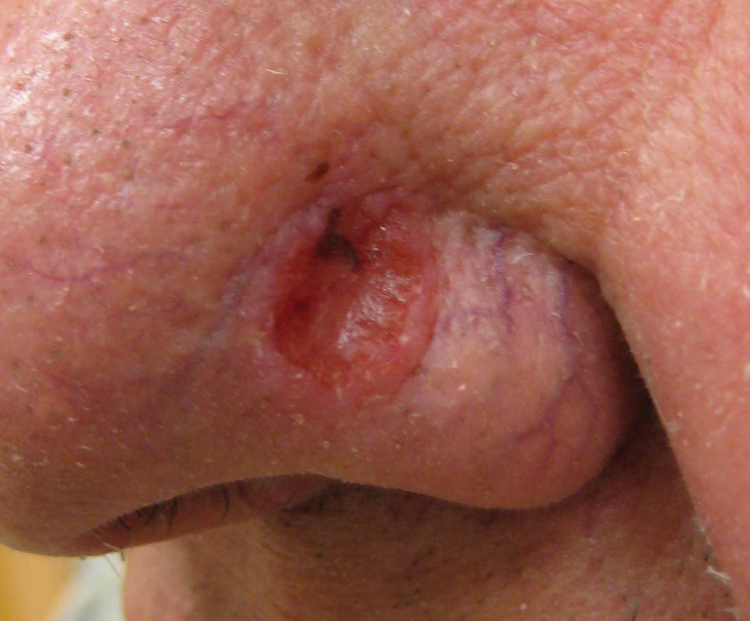 forstadier til hudkræft