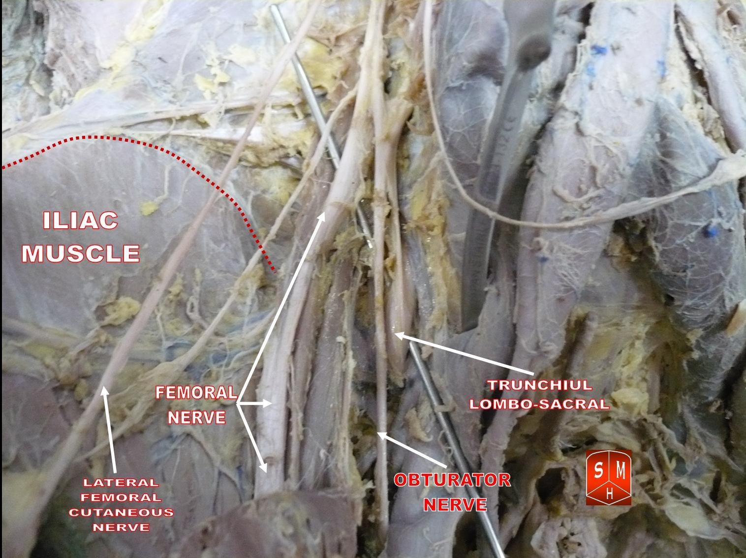 Description Branches of lumbar plexus jpgLumbosacral Plexus Cadaver