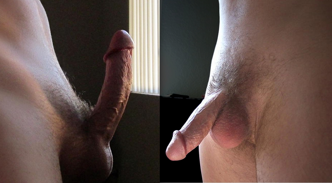 Side view of an erect circumcised penis