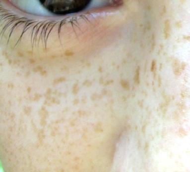 File:Freckles.jpg