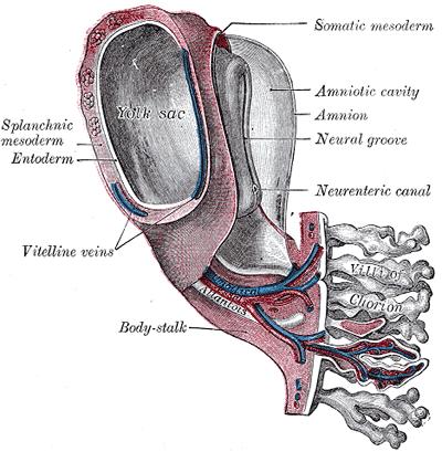 Amniotic Sac Wikiwand