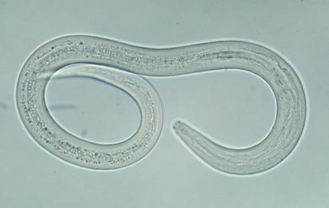 File:Hookworm filariform A.jpg