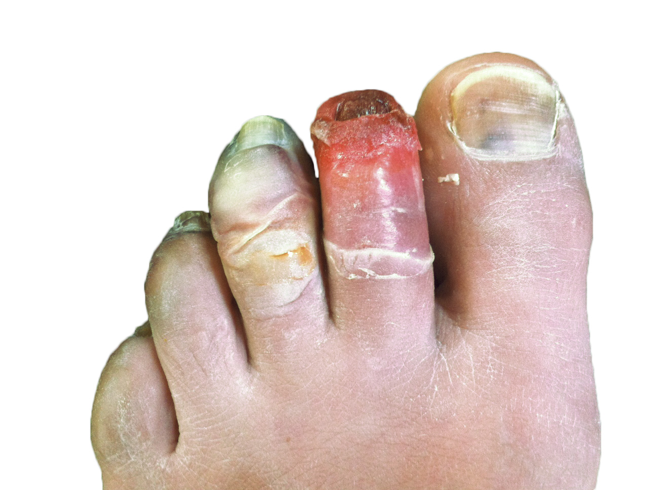 Chilblains Symptoms and causes - Mayo Clinic