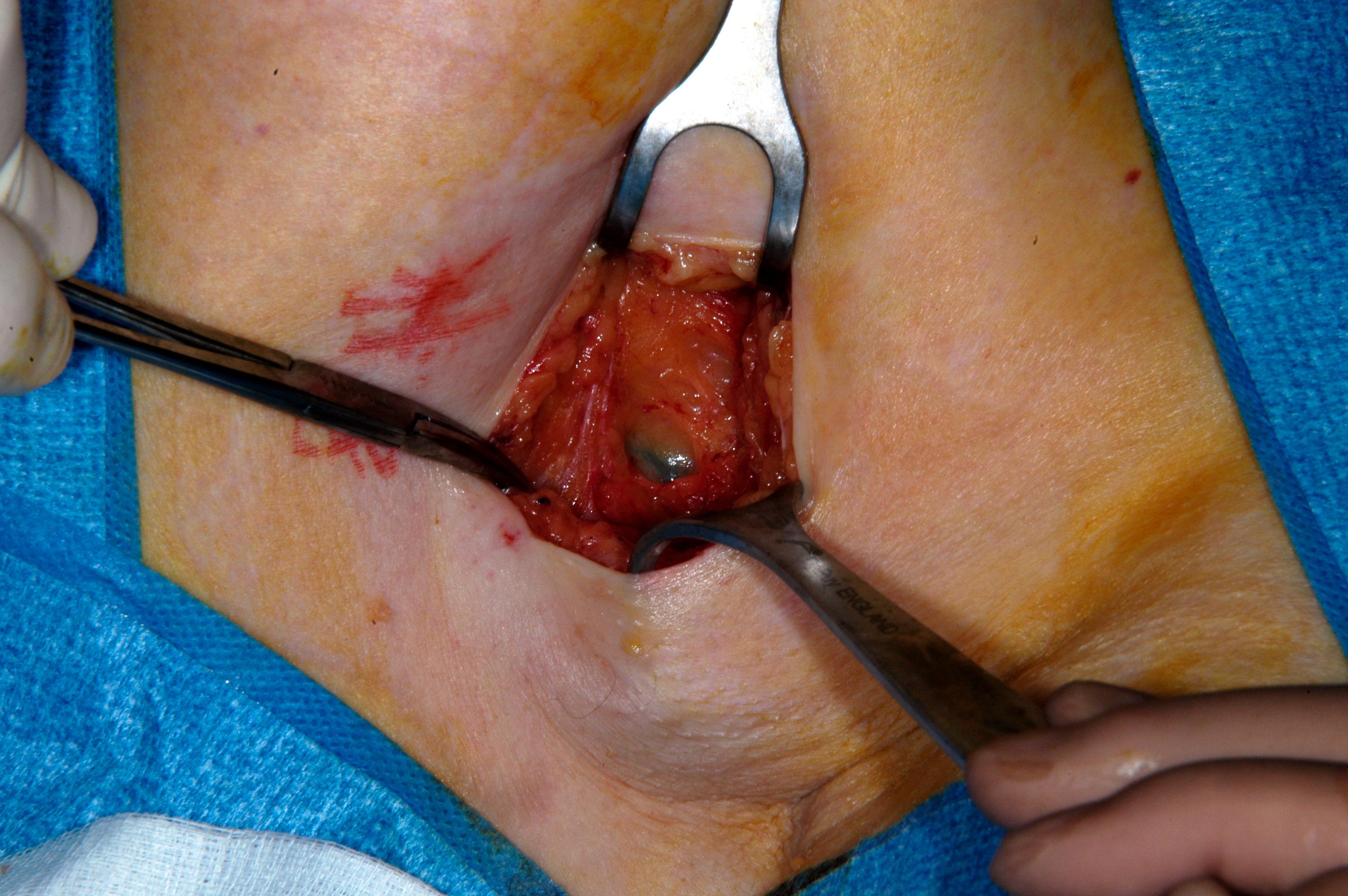 Swollen Armpit Lymph Nodes