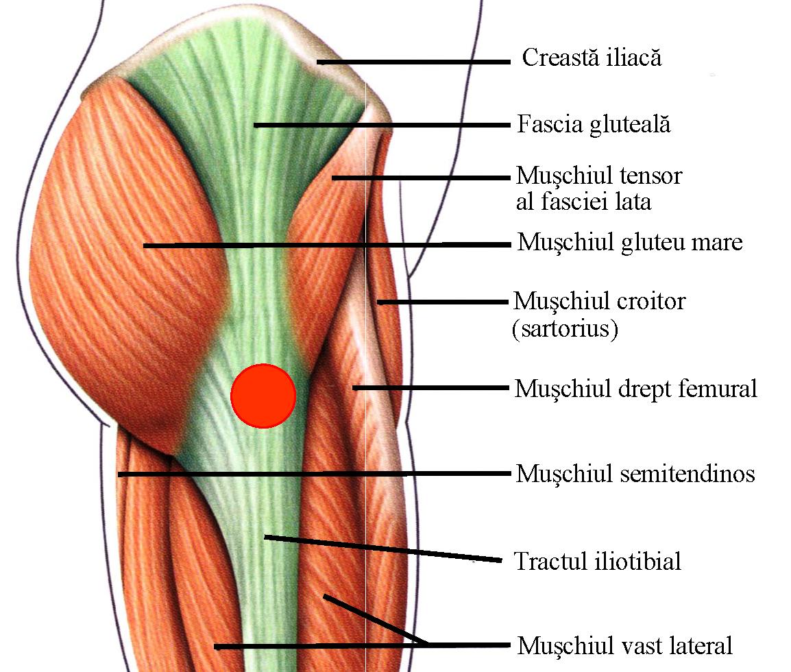 traumatism la articulația șoldului tratament articular pentru artroză