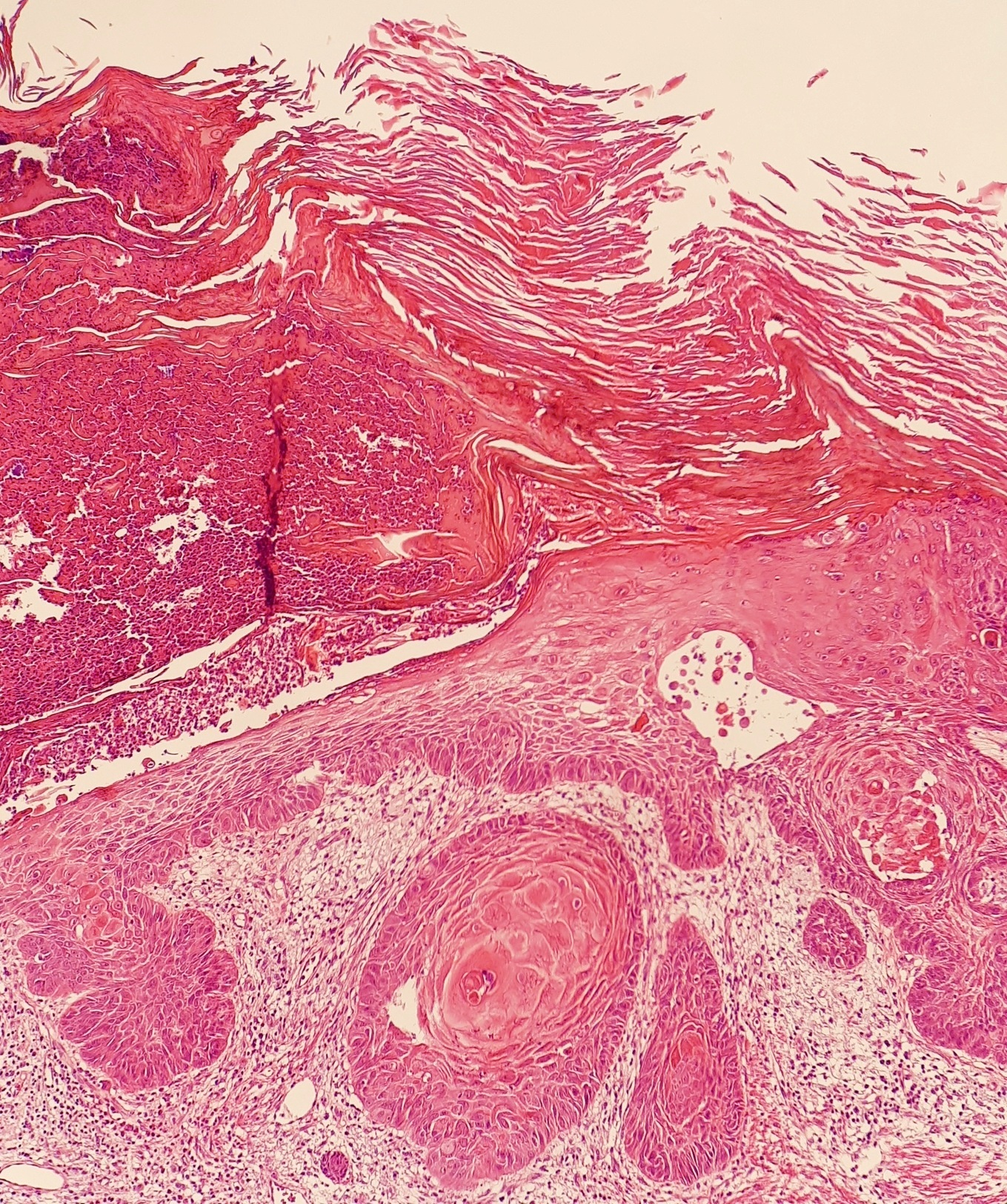 Squamous Cell Skin Cancer Wikiwand
