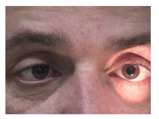miller fisher syndrome steroid treatment