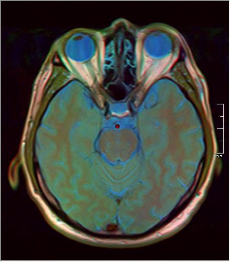 Brain MRI 293 13.png