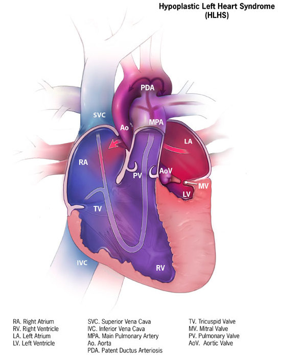 Hypoplastic left heart syndrome - Wikipedia