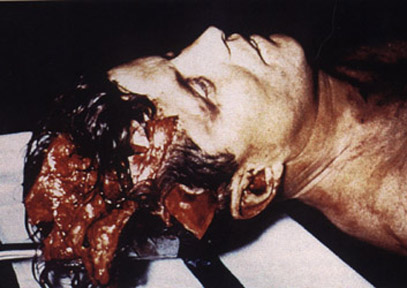 http://upload.wikimedia.org/wikipedia/commons/5/56/JFK_autopsy.jpg