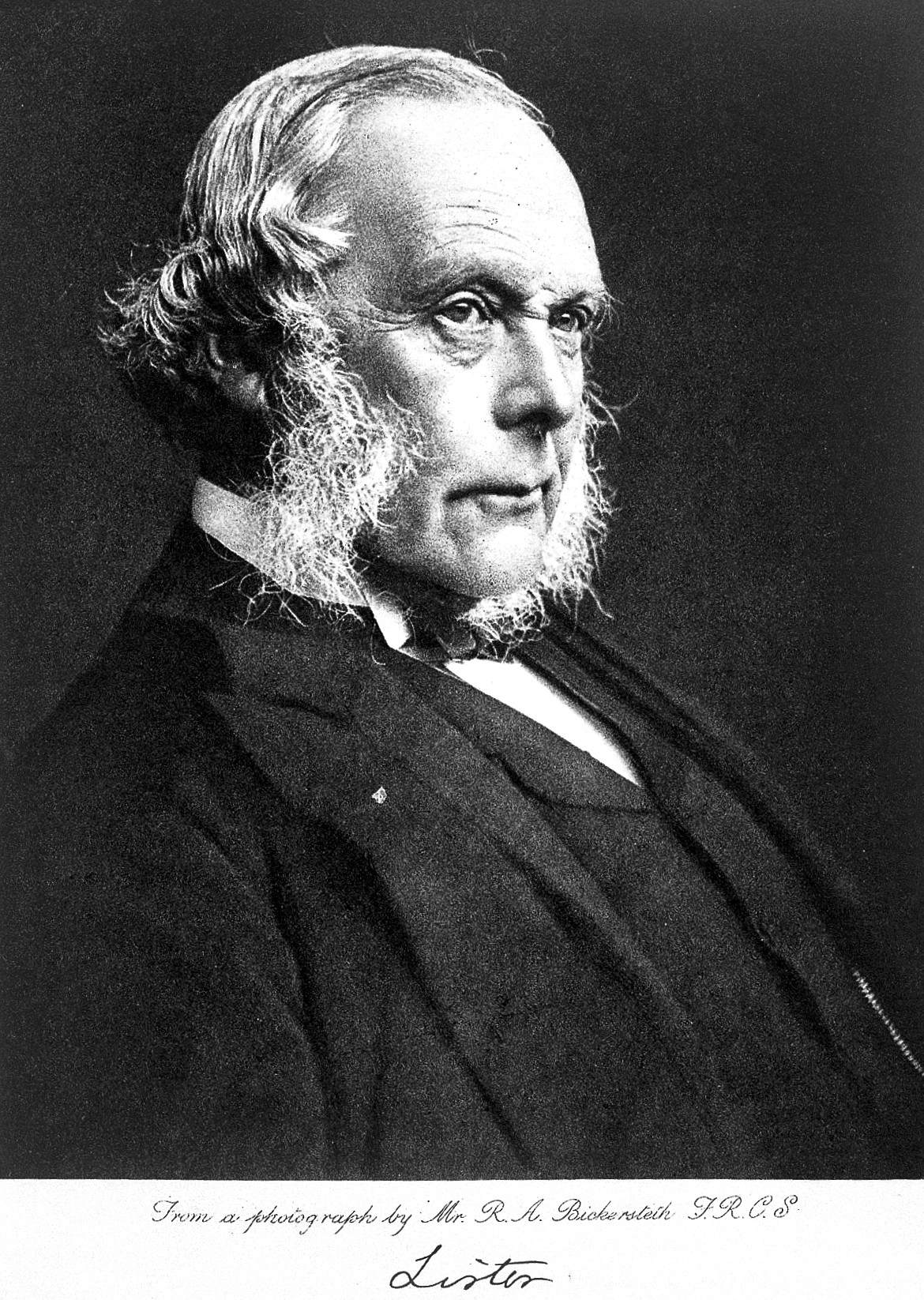 Black and white photograph of Joseph Lister, an English man in a suit with bushy white muttonchops.