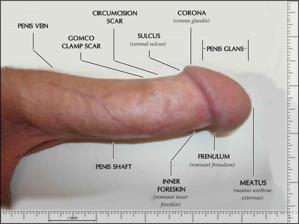 Circumcised penis photos