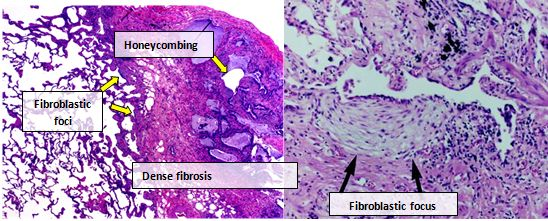 idiopathic pulmonary fibrosis wikipediaDiagram Of The Lungs With Ipf #20