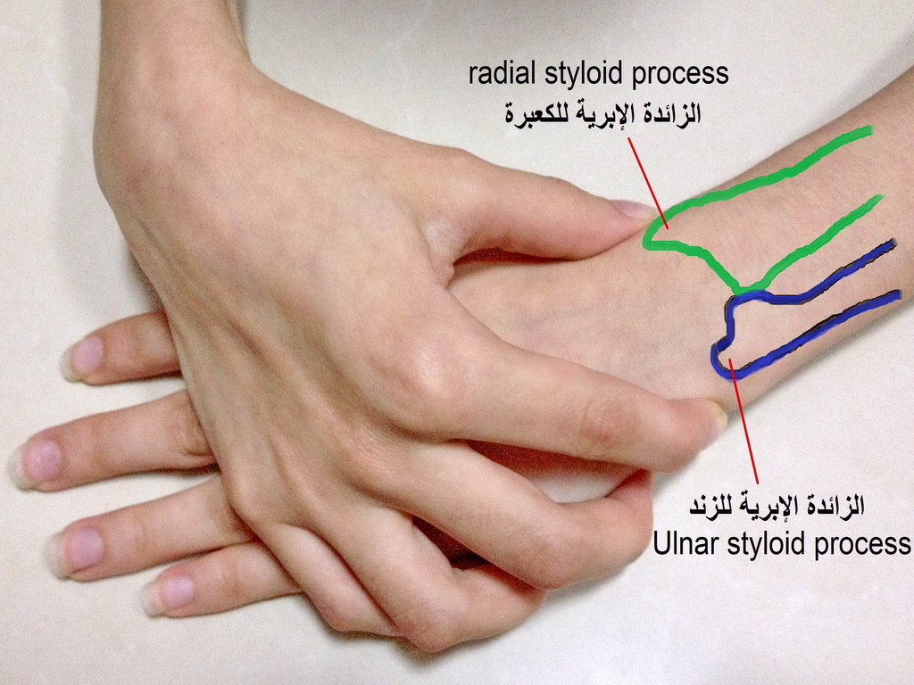 File:Ulnar and Radial Styloids Arabic YM.JPG - Wikimedia Commons