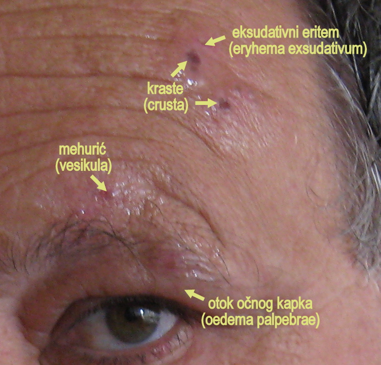(KudoZ) English to Spanish translation of shingles, chicken pox,: herpes (zoster), varicela Medical: Health Care (Medical) 3