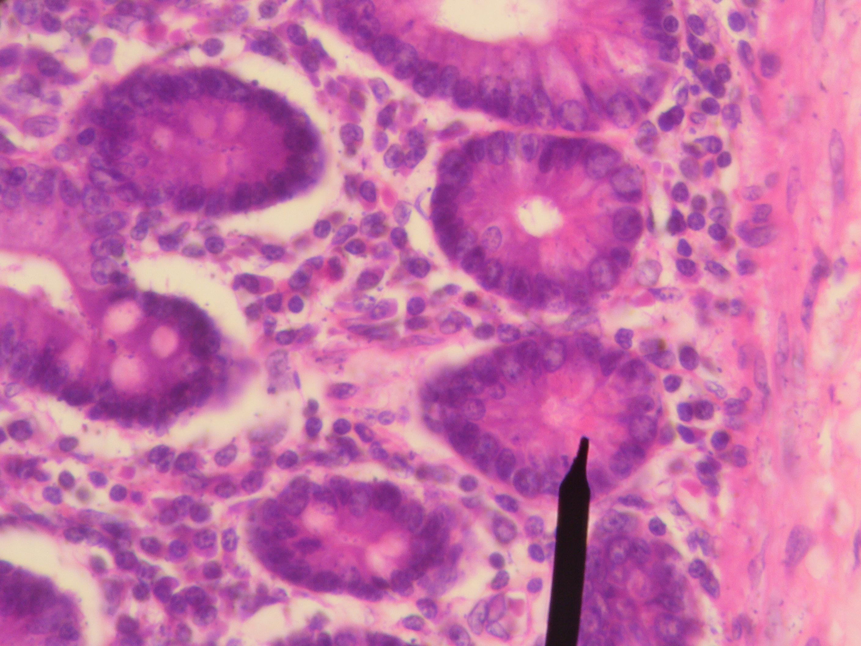File Human Pa h cells